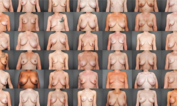 afbeelding van verschillende vrouwenborsten